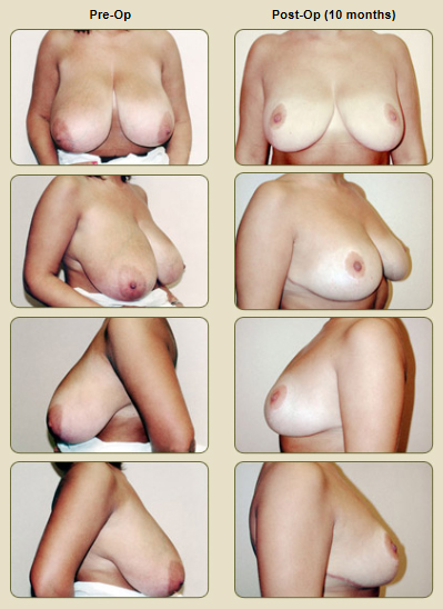 breast_reduction_before_and_after_picture