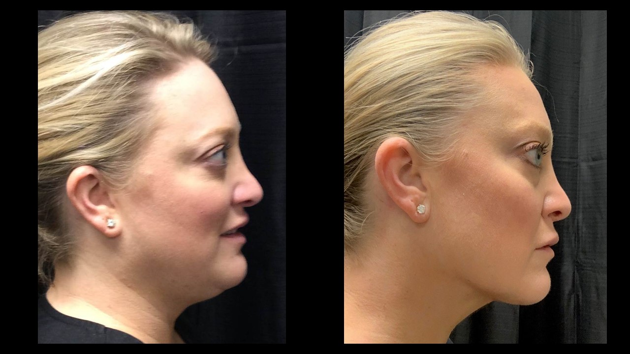 Lipo Neck before and after